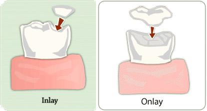 Inlays and Onlays | El Camino Dental